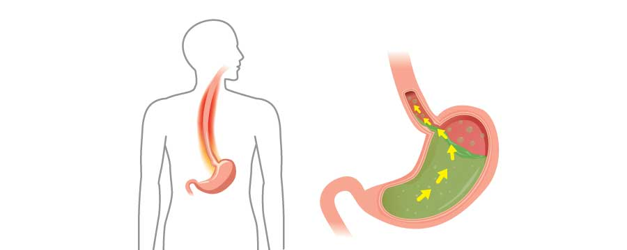 Everyday Gastroenterology: Beating Acid Reflux