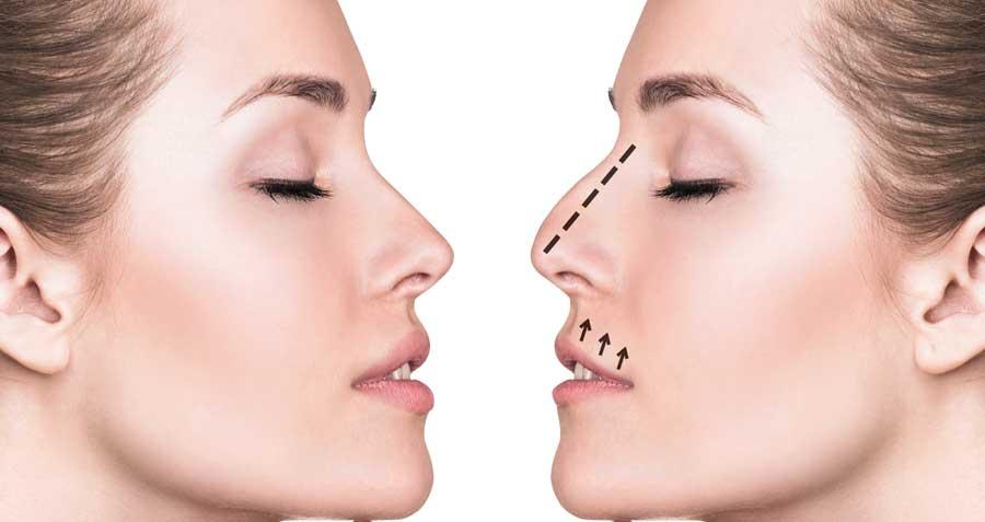 Nasal Reconstruction Plastic Surgery