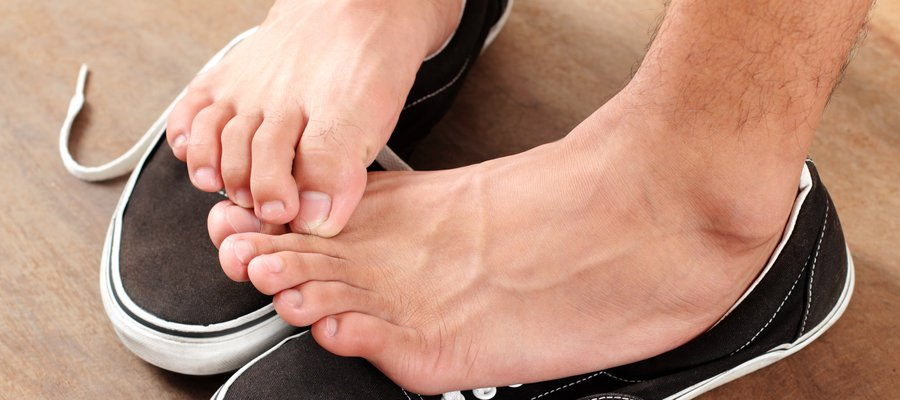 Ask Dermatologists: Athlete's Foot