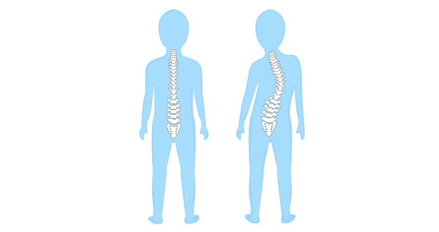 Ask Family Doctors: Scoliosis