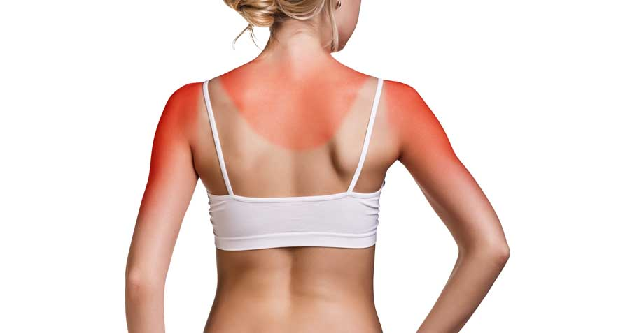 Advice from Dermatologists: Preventing Sunburns