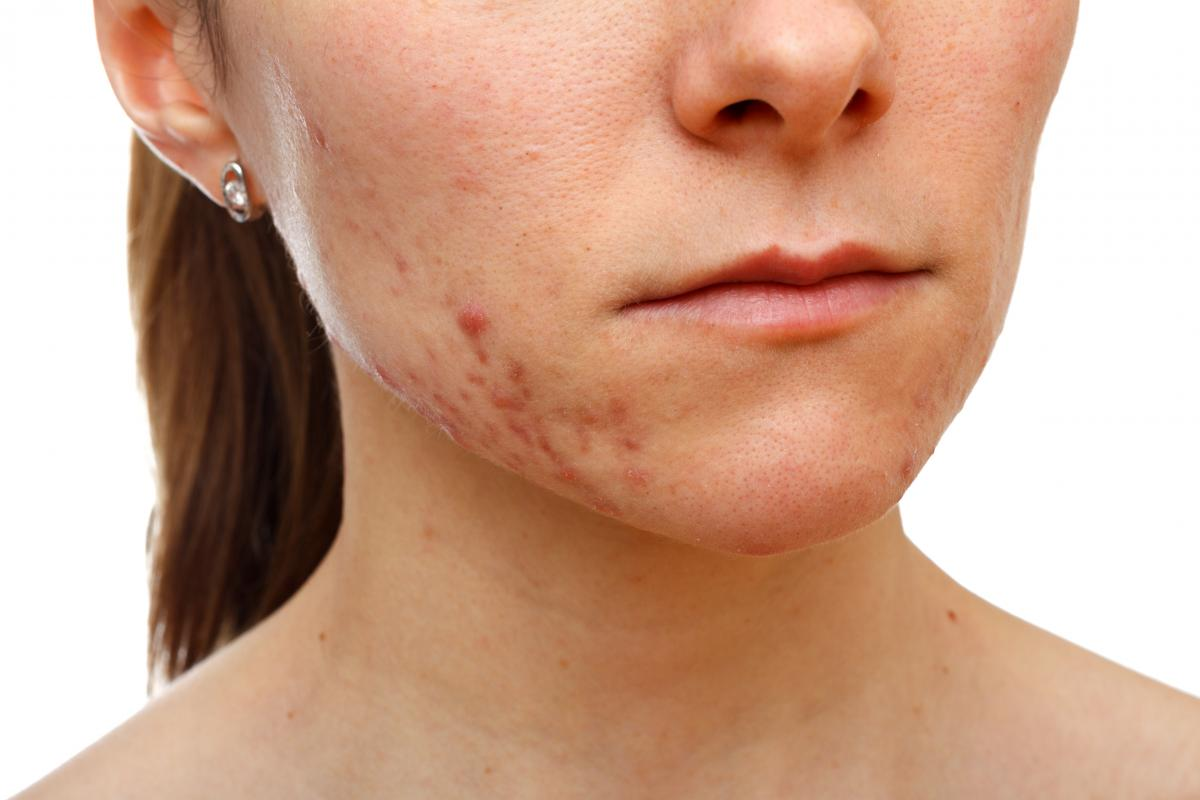 How to Be Rid of Acne Scars and Redness
