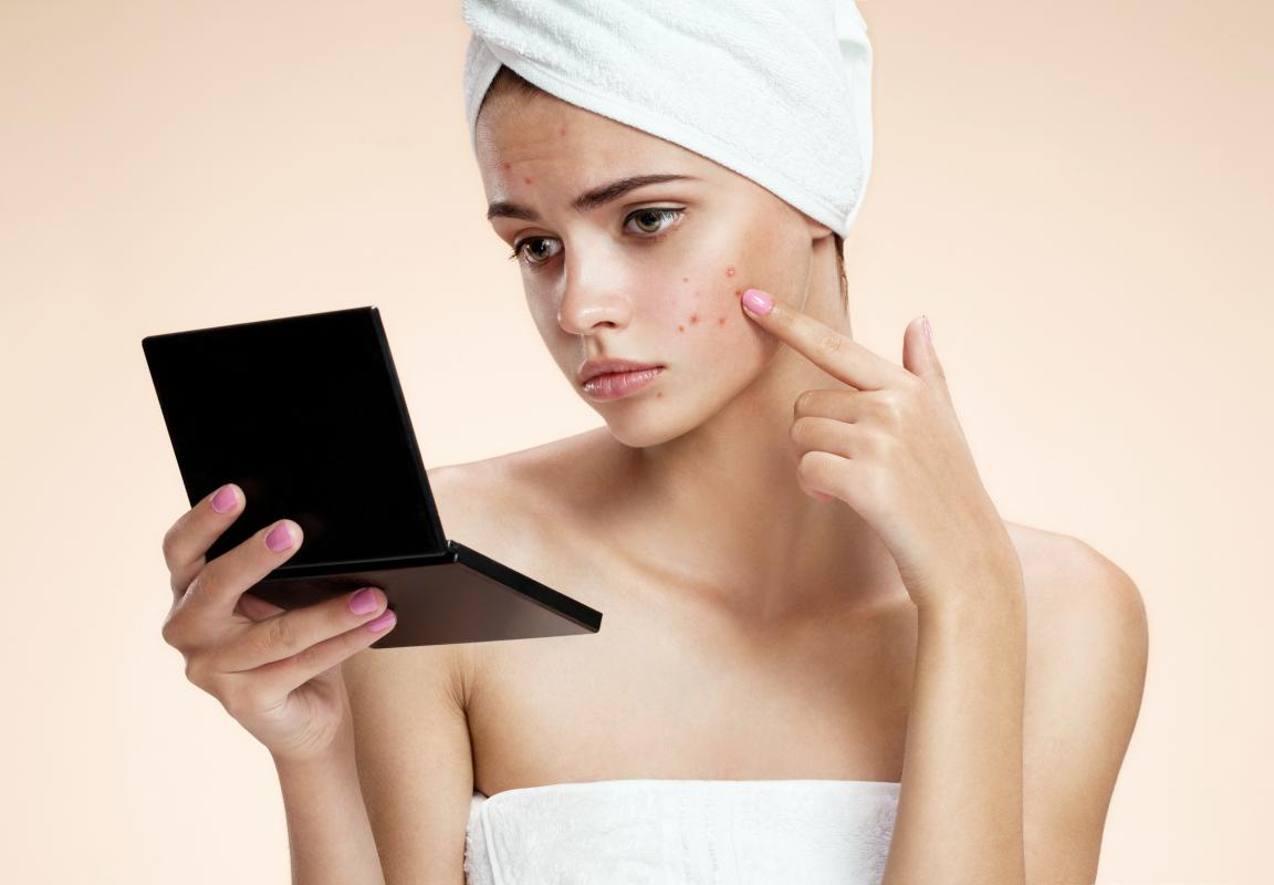 Stopping Acne in its Tracks