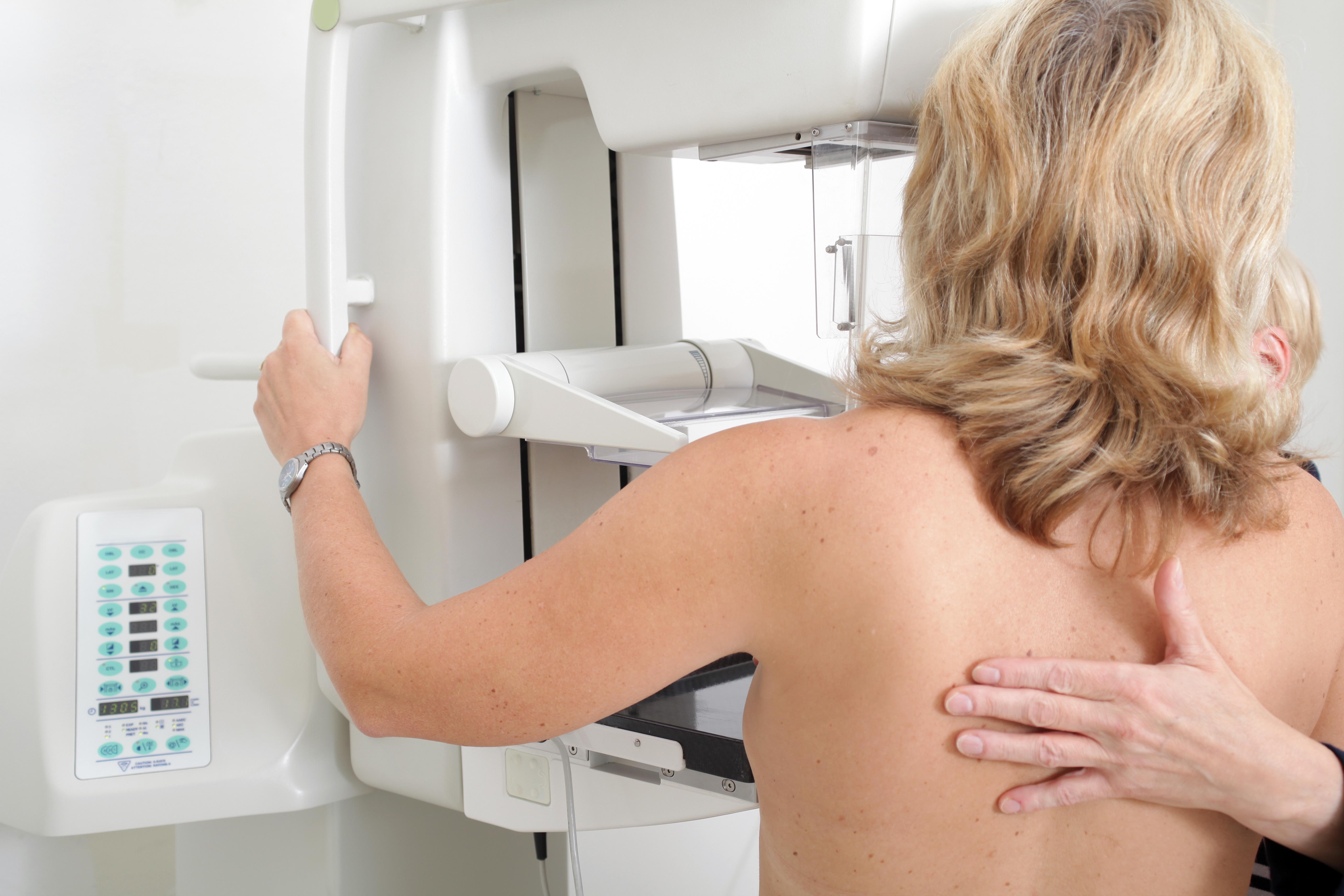 3D Mammographie